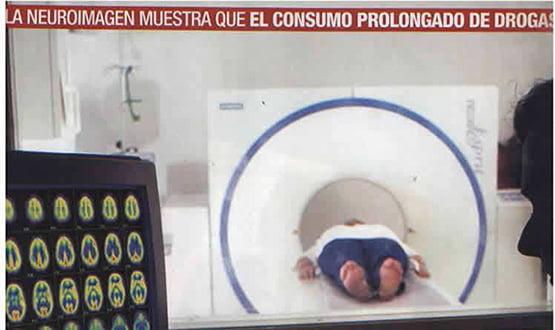 cerebro y drogas - Prensa en España