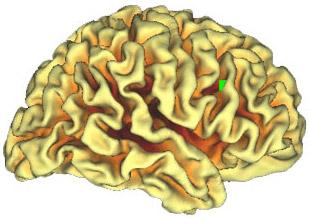 Nuevo atlas del cerebro (PALS)